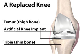 A Replaced Knee