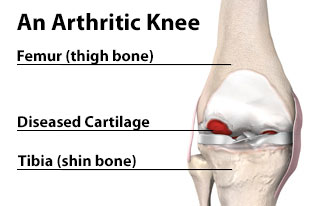 An Arthritic Knee