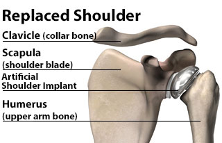 A Replaced Shoulder